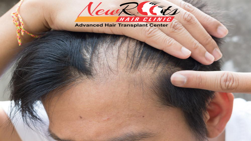 MONTHLY GROWTH OF HAIR TRANSPLANTS AFTER SURGERY – Newrootshairtransplant.com